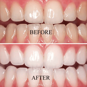 teeth-whitening-300x300